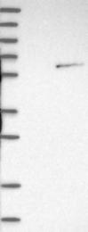 NBP1-86517 - NOVA1