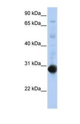 NBP1-52817 - NR0B2
