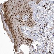 NBP1-90999 - Nucleoplasmin 3