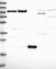 NBP1-90907 - Nucleoplasmin 3