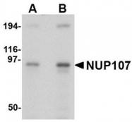 NBP1-76926 - NUP107