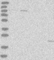 NBP1-89844 - OGT
