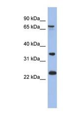 NBP1-56840 - TBC1D25 / OATL1