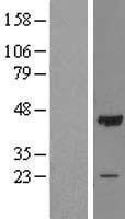 NBL1-13899 - OBFC1 Lysate