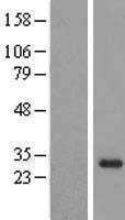 NBL1-13900 - OBFC2B Lysate