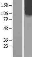 NBL1-13905 - OCRL Lysate