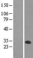 NBL1-13909 - ODF3L1 Lysate
