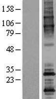 NBL1-13910 - ODF4 Lysate