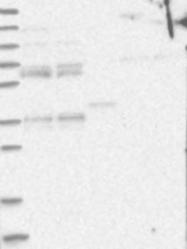 NBP1-89356 - OFD1