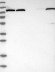 NBP1-84948 - OGDH