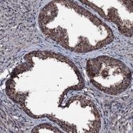 NBP1-82253 - OGFOD2