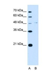 NBP1-57970 - Olfactomedin-4