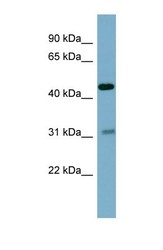 NBP1-59166 - Osteomodulin