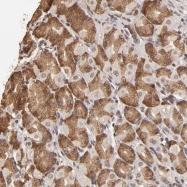 NBP1-88828 - Oligophrenin-1