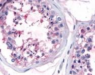 NLS4541 - Olfactory receptor 10R2