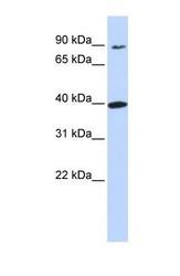 NBP1-70664 - Olfactory receptor 11H12