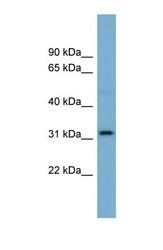NBP1-59861 - Olfactory receptor 2AT4