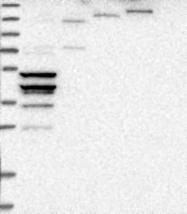 NBP1-83189 - Olfactory receptor 2K2