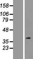 NBL1-13958 - OR2L2 Lysate