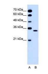 NBP1-59622 - Olfactory receptor 5T2