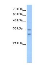 NBP1-59363 - Olfactory receptor 6C70