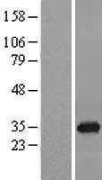 NBL1-13977 - ORC6L Lysate