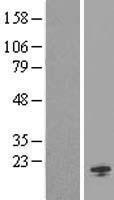 NBL1-13979 - ORMDL1 Lysate