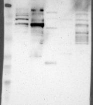 NBP1-86153 - OSBPL10