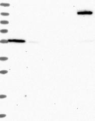 NBP1-92236 - OSBPL2