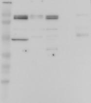 NBP1-82968 - OSBPL3