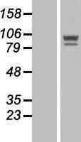 NBL1-13990 - OSBPL5 Lysate