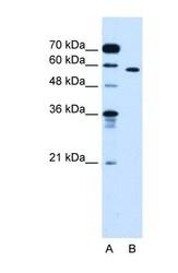 NBP1-55152 - OSBPL9