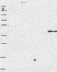 NBP1-83378 - OSGEP / GCPL1