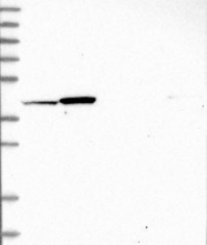 NBP1-85928 - OSGEPL1