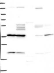 NBP1-85861 - Orthopedia / OTP