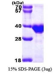 NBP1-30186 - Otubain-1 (OTUB1)