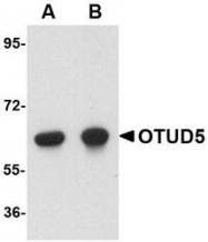 NBP1-76943 - OTUD5