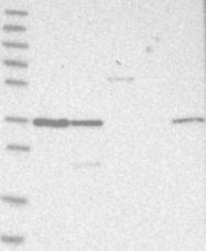 NBP1-85652 - OTUD6B / DUBA5