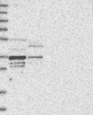NBP1-85653 - OTUD6B / DUBA5