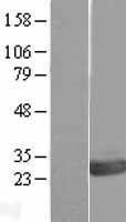 NBL1-14016 - OVCA2 Lysate