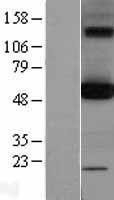 NBL1-14018 - OXCT1 Lysate