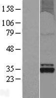 NBL1-14022 - OXNAD1 Lysate