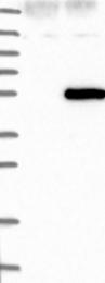NBP1-84730 - OXSM