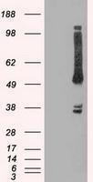 NBP1-47905 - OXSR1 / OSR1