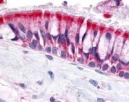 NLS3227 - Olfactory receptor 6N1