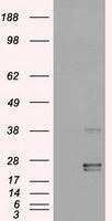 NBP1-47904 - Oncostatin-M