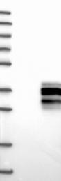 NBP1-87768 - Oncostatin-M
