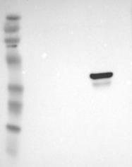 NBP1-87408 - Ornithine carbamoyltransferase