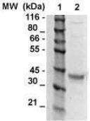NBP1-74625 - Osteopontin / SPP1