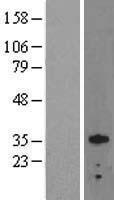 NBL1-14015 - Otx2 Lysate